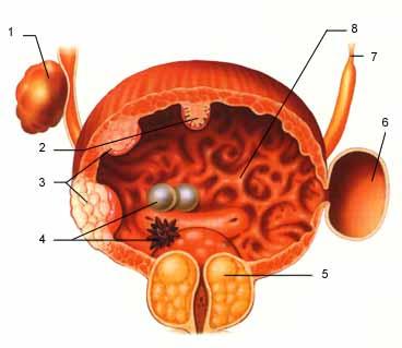 Bexiga (Patologias)
